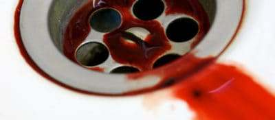 """Detail of """"Blood drainage,"""" from the series """"Sangre Menstrual"""" by gaelx, via Flickr."""